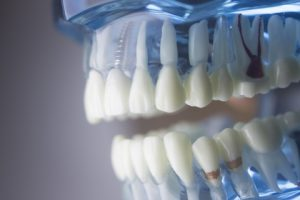 model of teeth and dental implant